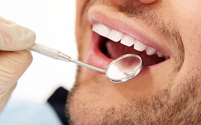Man's healthy smile in dental check-up